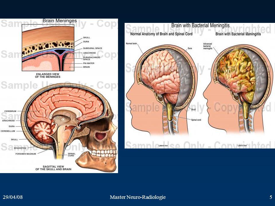 Master Neuro-Radiologie