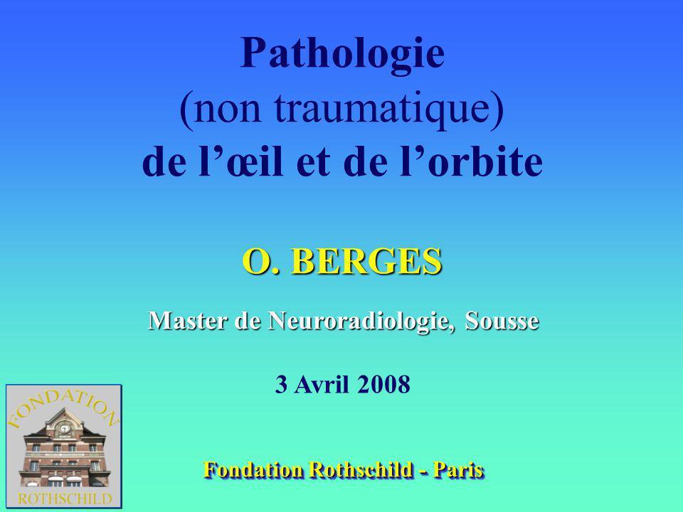 Master de Neuroradiologie, Sousse Fondation Rothschild - Paris