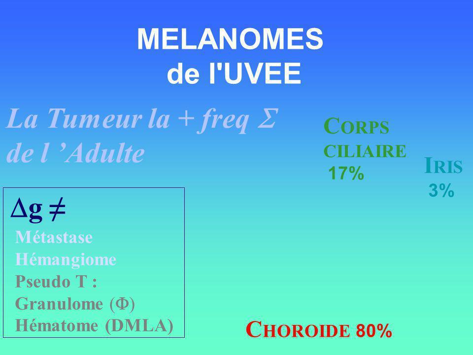 MELANOMES de l UVEE La Tumeur la + freq S de l 'Adulte Dg ≠ CORPS IRIS