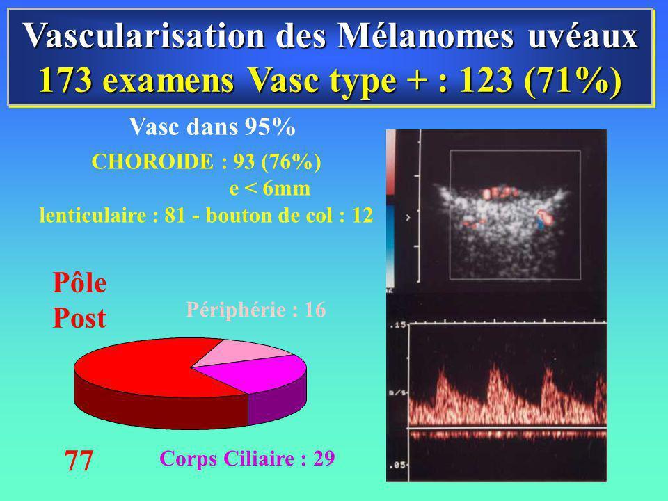 Vascularisation des Mélanomes uvéaux