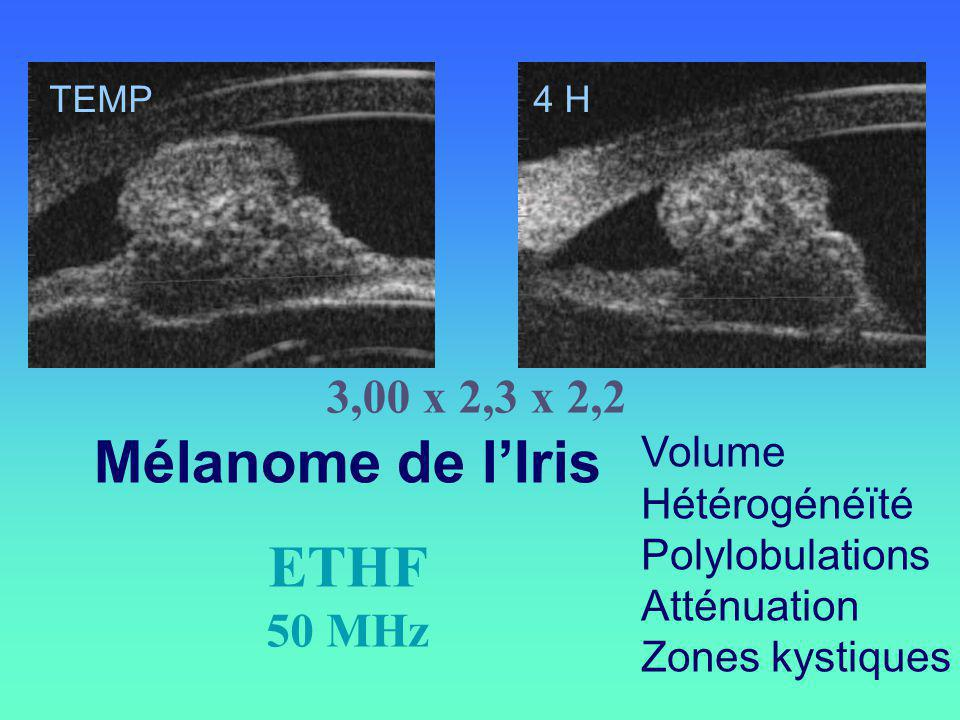 Mélanome de l'Iris ETHF 3,00 x 2,3 x 2,2 50 MHz Volume Hétérogénéïté