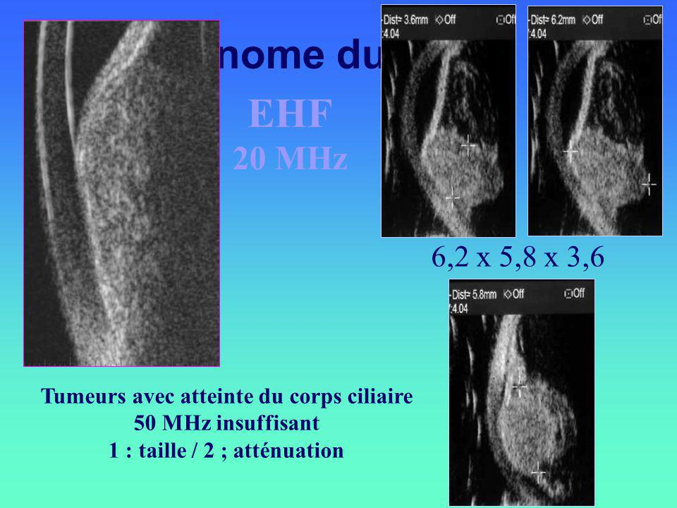 Tumeurs avec atteinte du corps ciliaire 1 : taille / 2 ; atténuation