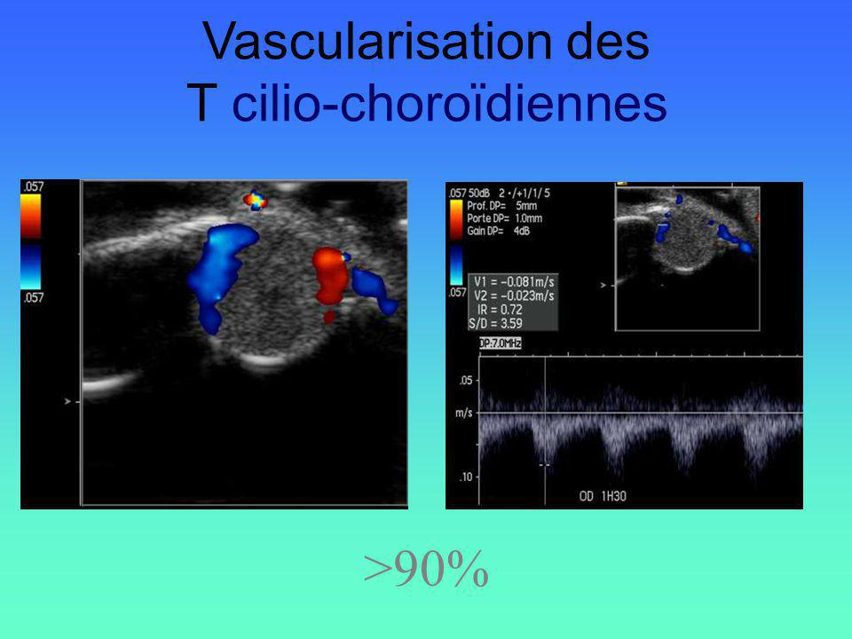 T cilio-choroïdiennes