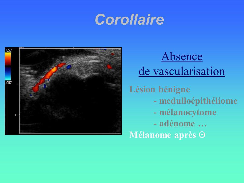 Corollaire Absence de vascularisation Lésion bénigne