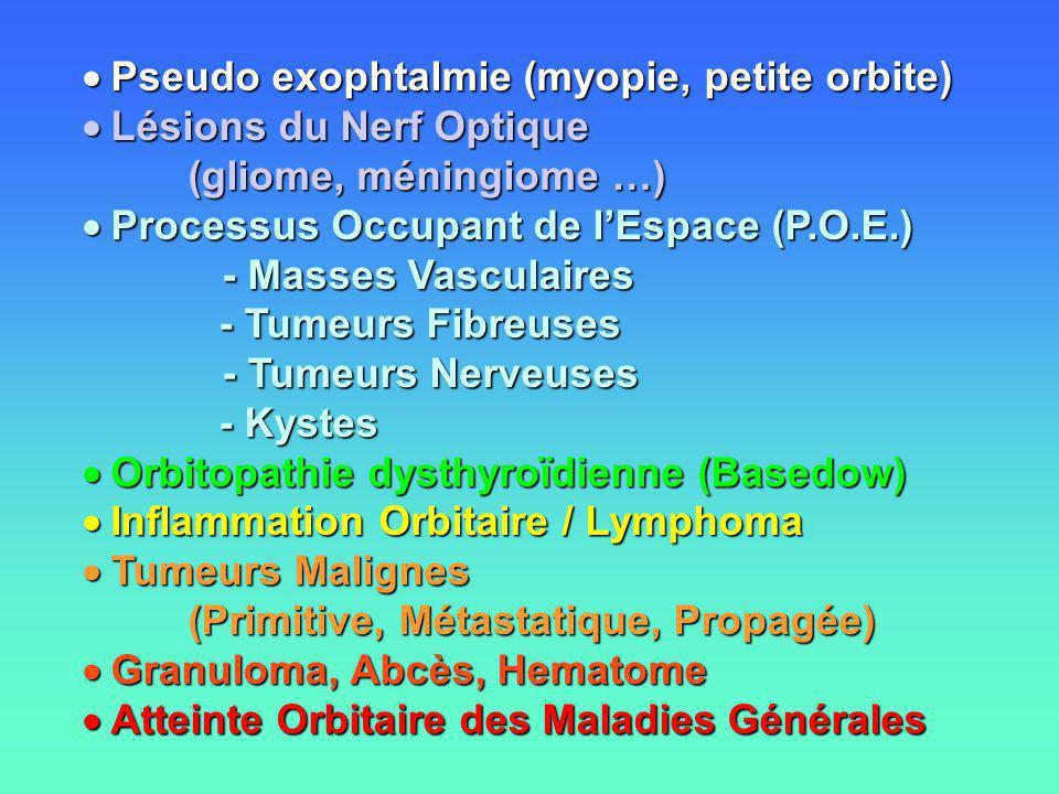  Pseudo exophtalmie (myopie, petite orbite)