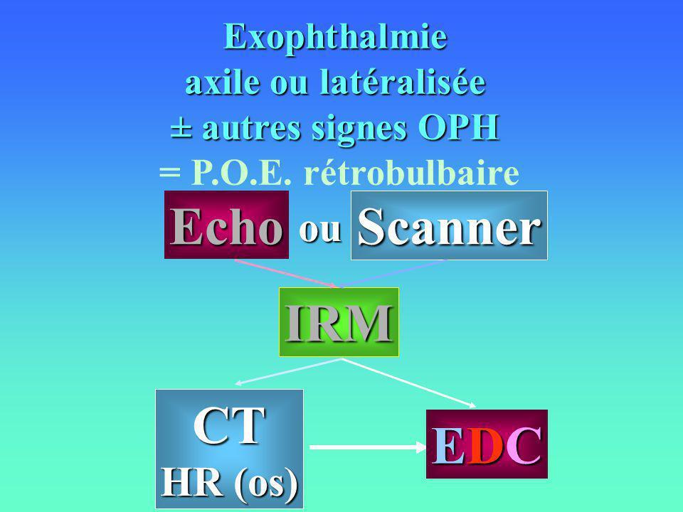 Echo Scanner IRM CT EDC ou HR (os) Exophthalmie axile ou latéralisée