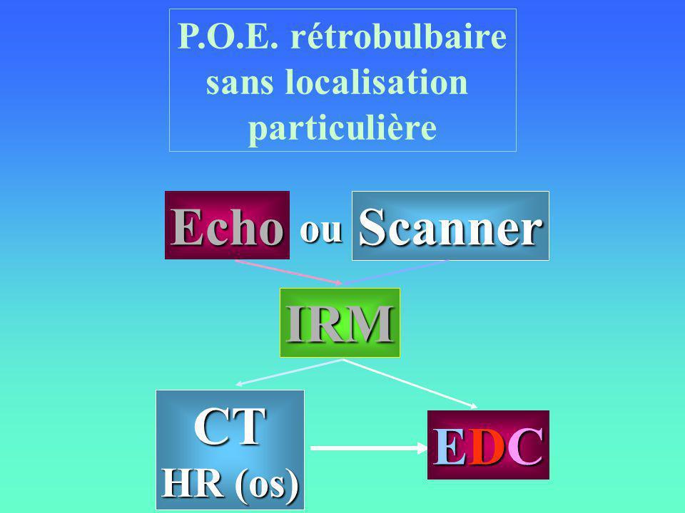 Echo Scanner IRM CT EDC ou HR (os) P.O.E. rétrobulbaire