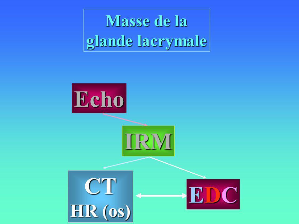Masse de la glande lacrymale Echo IRM CT HR (os) EDC