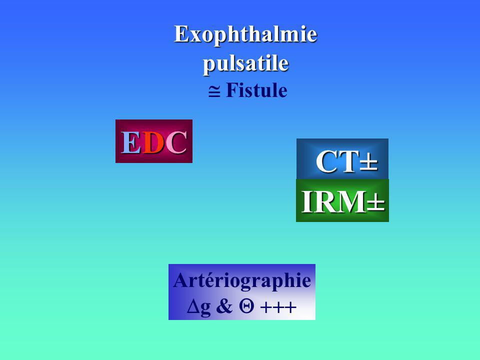 EDC CT± IRM± Exophthalmie pulsatile  Fistule Artériographie