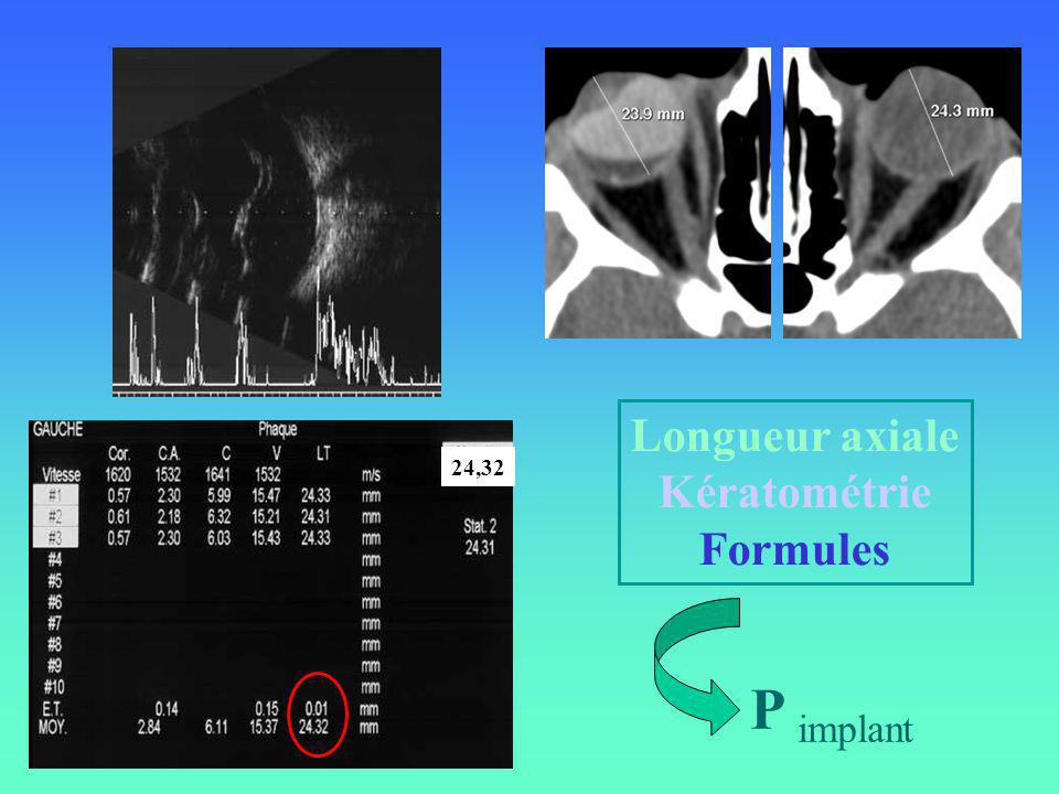 Longueur axiale Kératométrie Formules 24,32 P implant