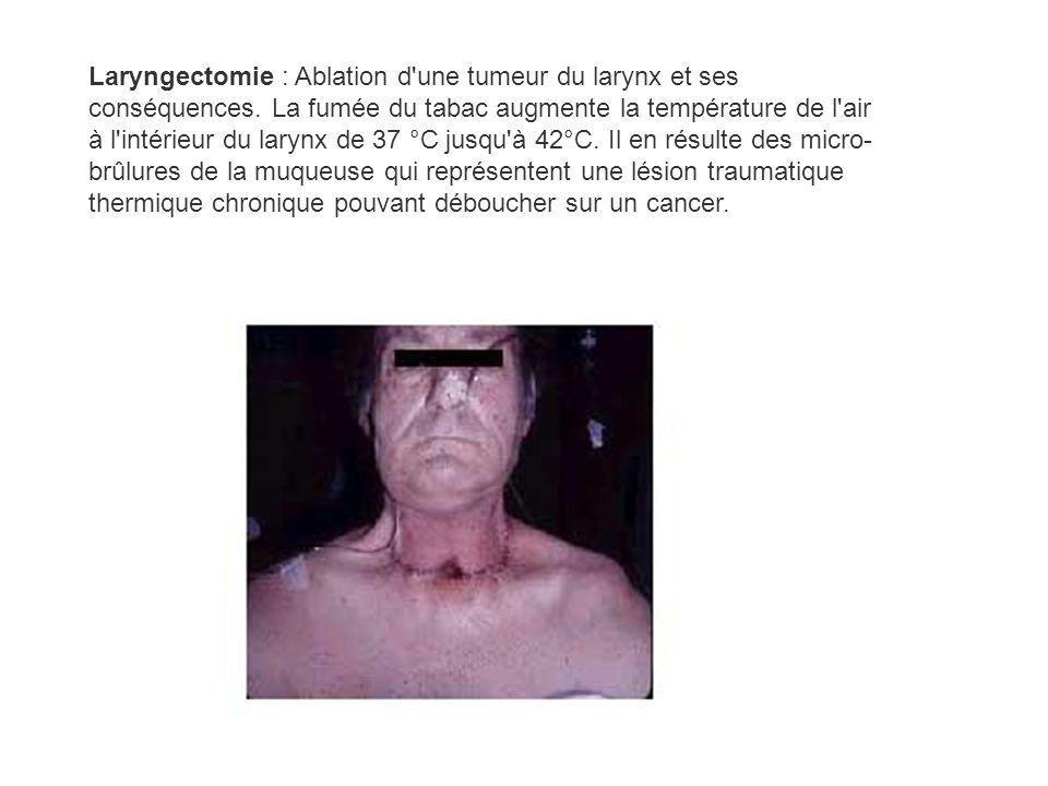 Laryngectomie : Ablation d une tumeur du larynx et ses conséquences