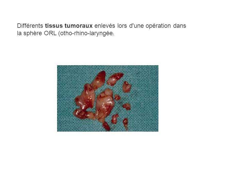 Différents tissus tumoraux enlevés lors d une opération dans la sphère ORL (otho-rhino-laryngée).