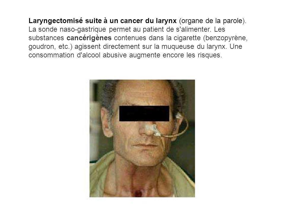 Laryngectomisé suite à un cancer du larynx (organe de la parole)