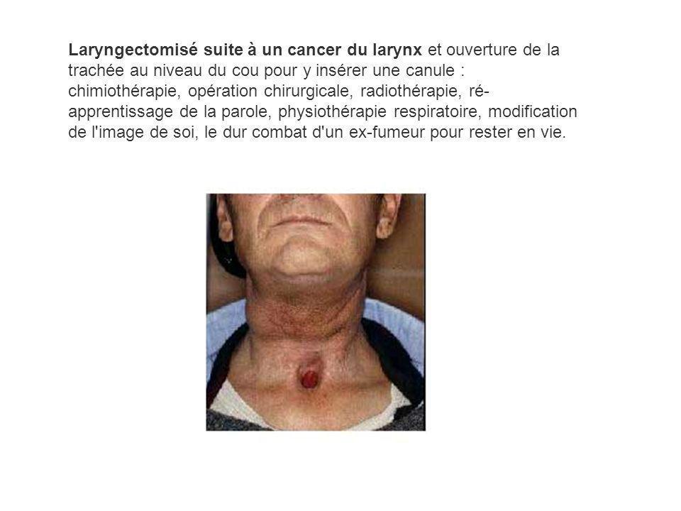Laryngectomisé suite à un cancer du larynx et ouverture de la trachée au niveau du cou pour y insérer une canule : chimiothérapie, opération chirurgicale, radiothérapie, ré-apprentissage de la parole, physiothérapie respiratoire, modification de l image de soi, le dur combat d un ex-fumeur pour rester en vie.