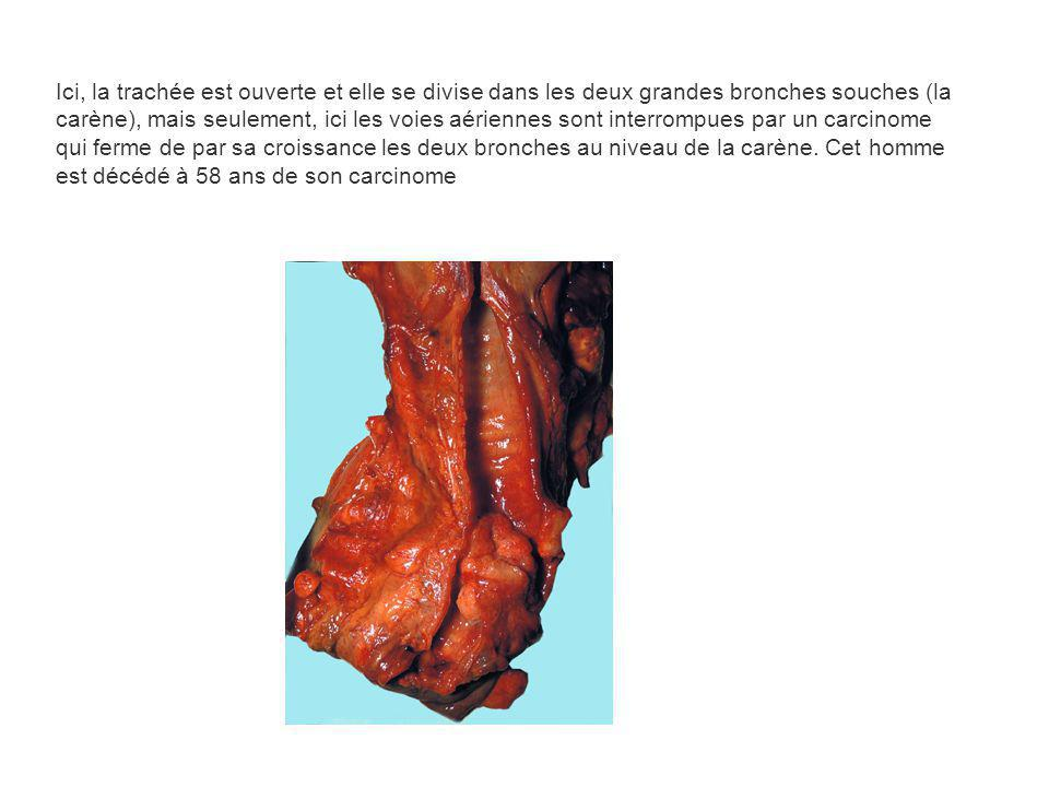 Ici, la trachée est ouverte et elle se divise dans les deux grandes bronches souches (la carène), mais seulement, ici les voies aériennes sont interrompues par un carcinome qui ferme de par sa croissance les deux bronches au niveau de la carène.