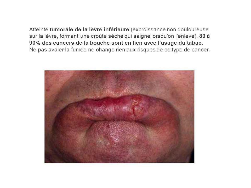 Atteinte tumorale de la lèvre inférieure (excroissance non douloureuse sur la lèvre, formant une croûte sèche qui saigne lorsqu on l enlève).