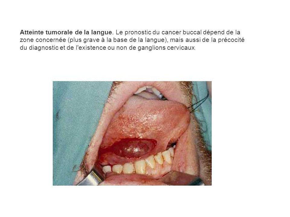 Atteinte tumorale de la langue