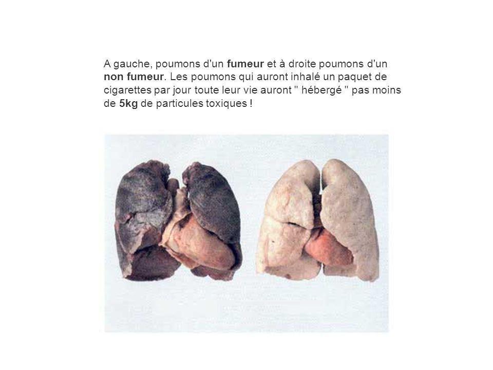 A gauche, poumons d un fumeur et à droite poumons d un non fumeur