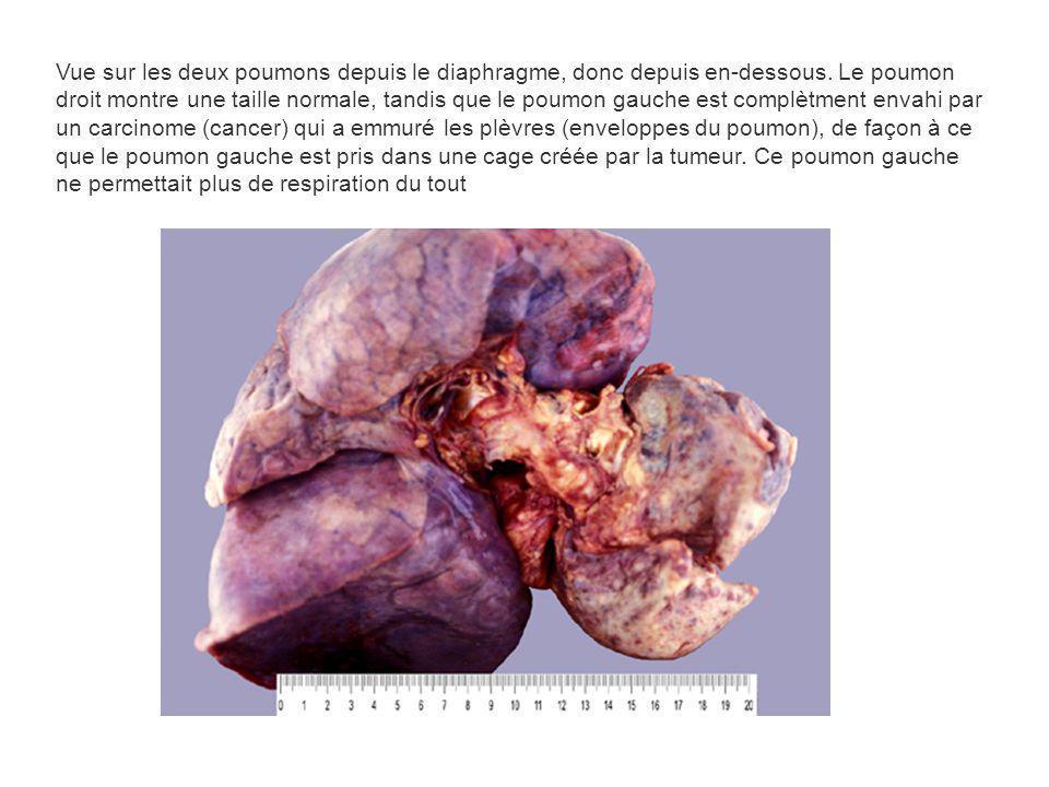 Vue sur les deux poumons depuis le diaphragme, donc depuis en-dessous