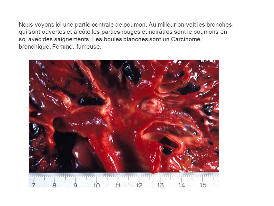 Nous voyons ici une partie centrale de poumon