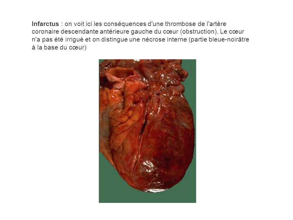 Infarctus : on voit ici les conséquences d une thrombose de l artère coronaire descendante antérieure gauche du cœur (obstruction).
