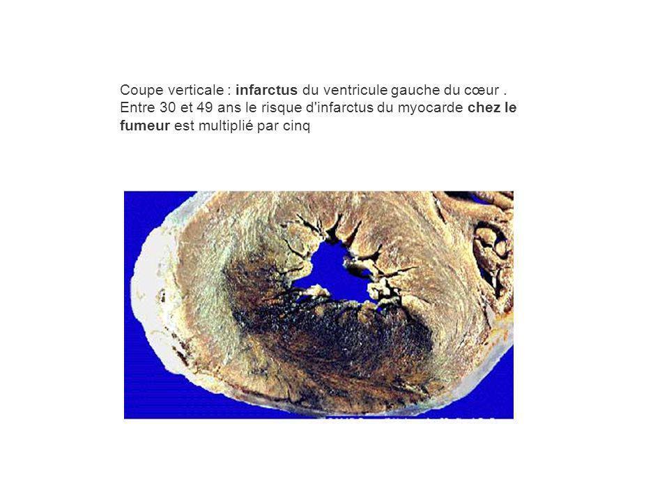 Coupe verticale : infarctus du ventricule gauche du cœur