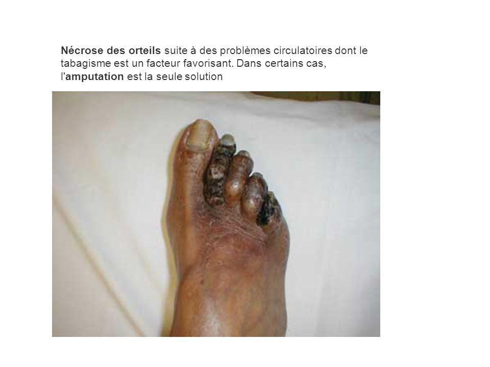 Nécrose des orteils suite à des problèmes circulatoires dont le tabagisme est un facteur favorisant.