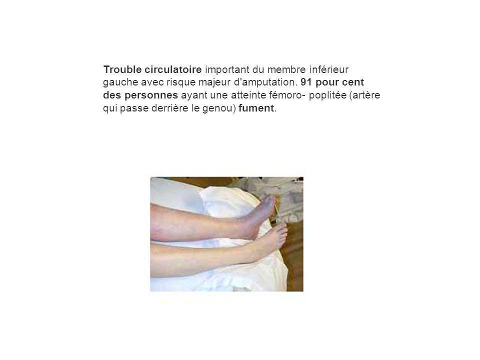 Trouble circulatoire important du membre inférieur gauche avec risque majeur d amputation.