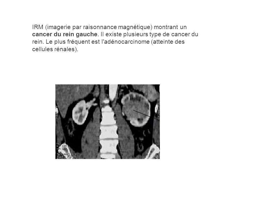 IRM (imagerie par raisonnance magnétique) montrant un cancer du rein gauche.
