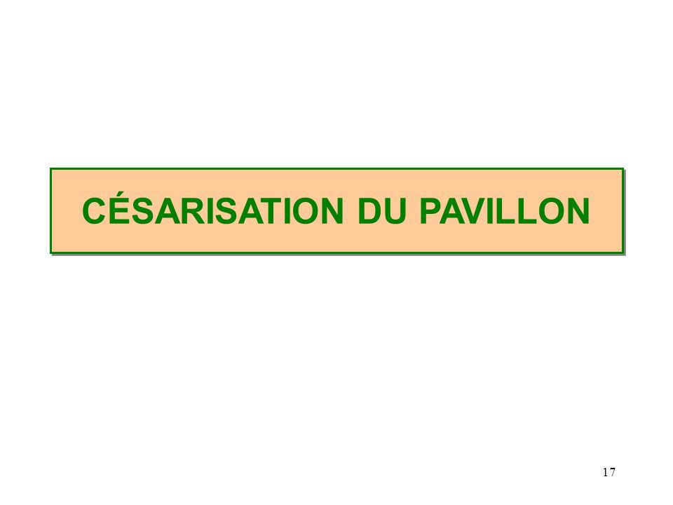 CÉSARISATION DU PAVILLON