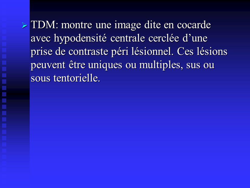 TDM: montre une image dite en cocarde avec hypodensité centrale cerclée d'une prise de contraste péri lésionnel.