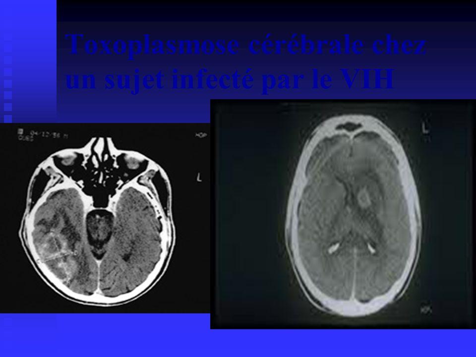 Toxoplasmose cérébrale chez un sujet infecté par le VIH