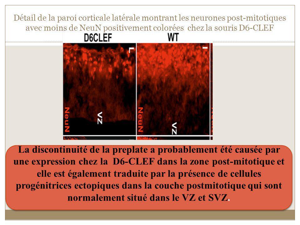 Détail de la paroi corticale latérale montrant les neurones post-mitotiques avec moins de NeuN positivement colorées chez la souris D6-CLEF