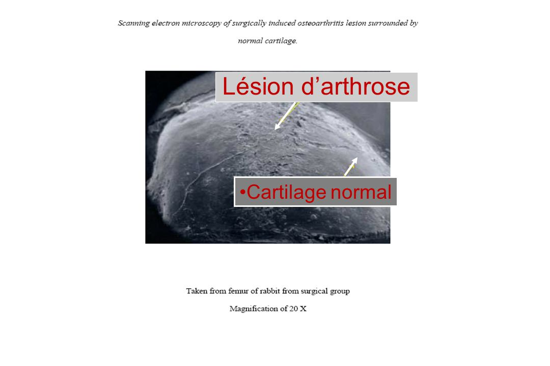Lésion d'arthrose Cartilage normal