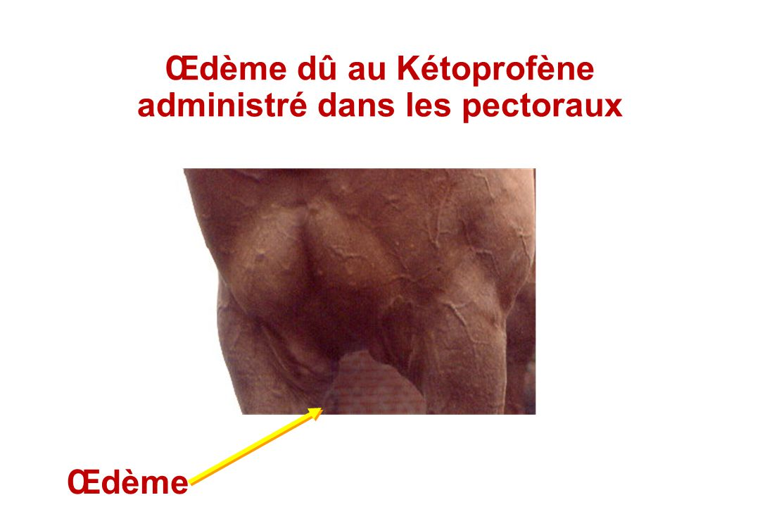 Œdème dû au Kétoprofène administré dans les pectoraux
