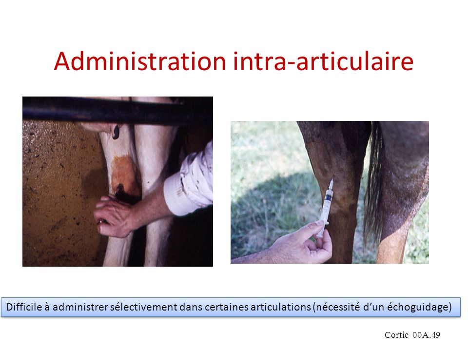 Administration intra-articulaire