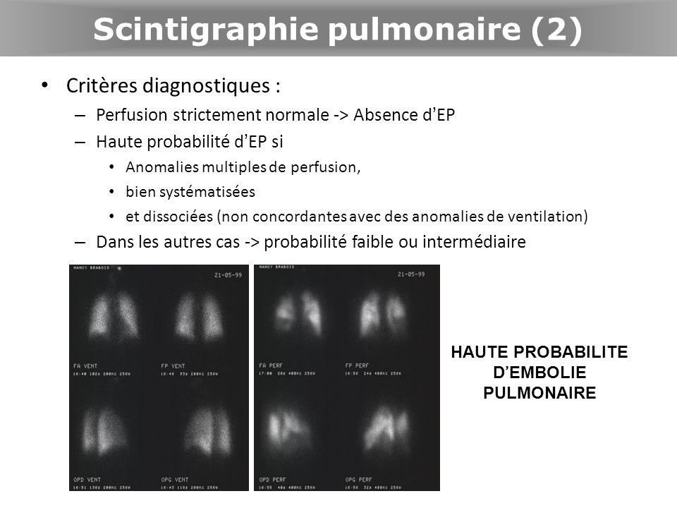 Scintigraphie pulmonaire (2)