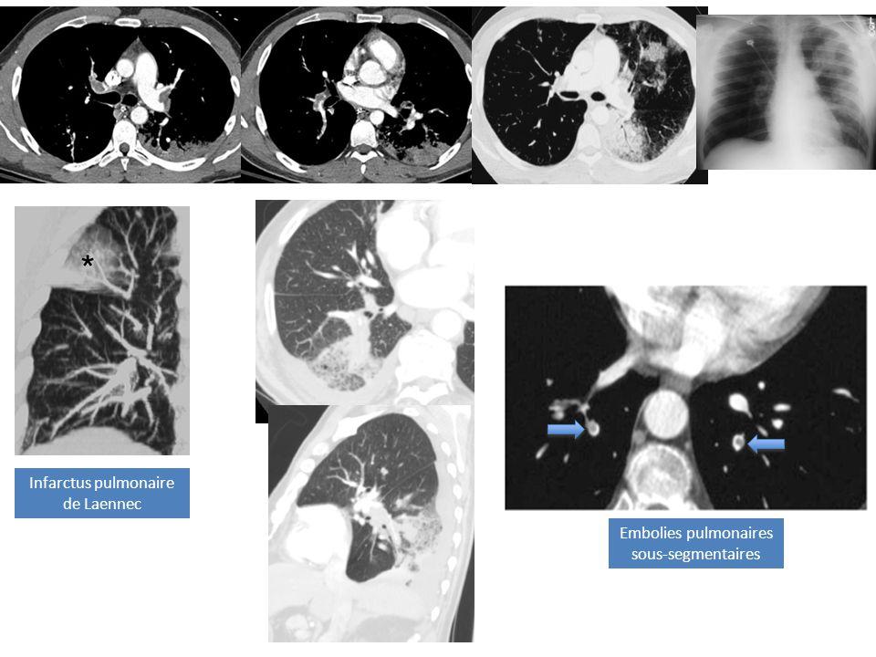 Infarctus pulmonaire de Laennec