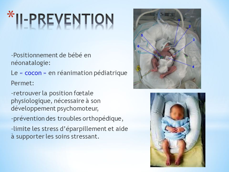 II-PREVENTION