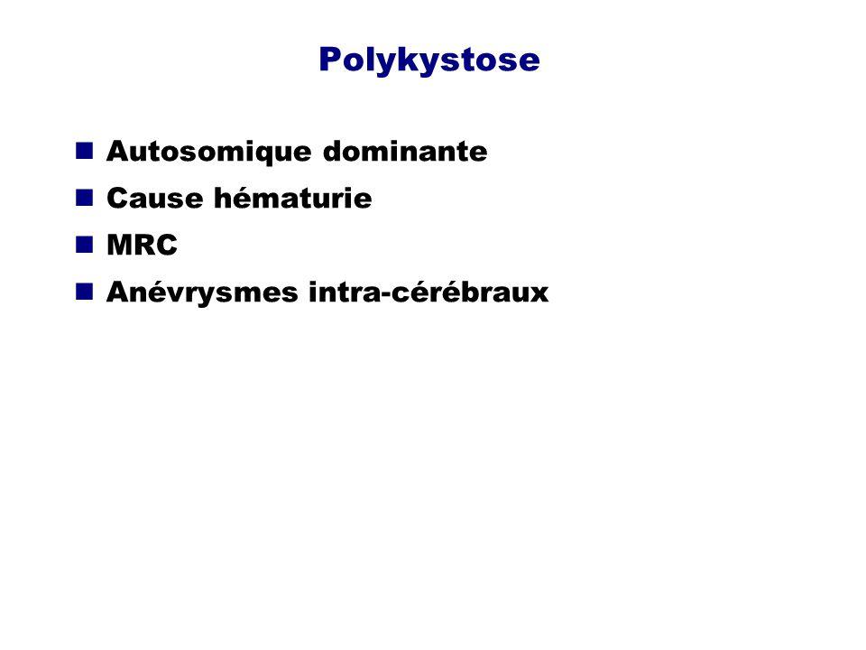 Polykystose Autosomique dominante Cause hématurie MRC