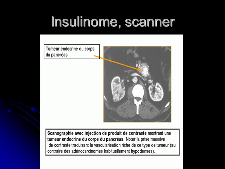 Insulinome, scanner
