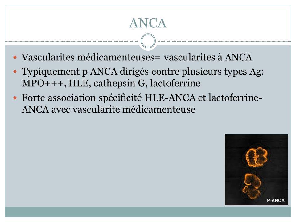 ANCA Vascularites médicamenteuses= vascularites à ANCA