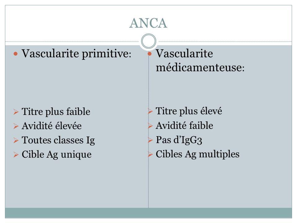 ANCA Vascularite primitive: Vascularite médicamenteuse: