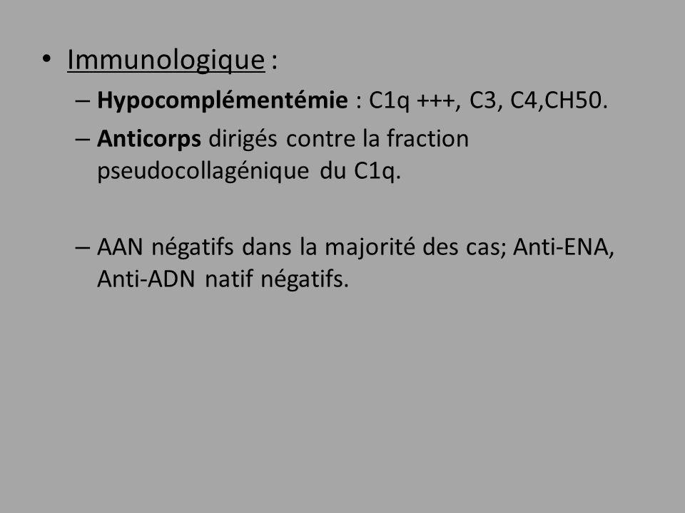 Immunologique : Hypocomplémentémie : C1q +++, C3, C4,CH50.