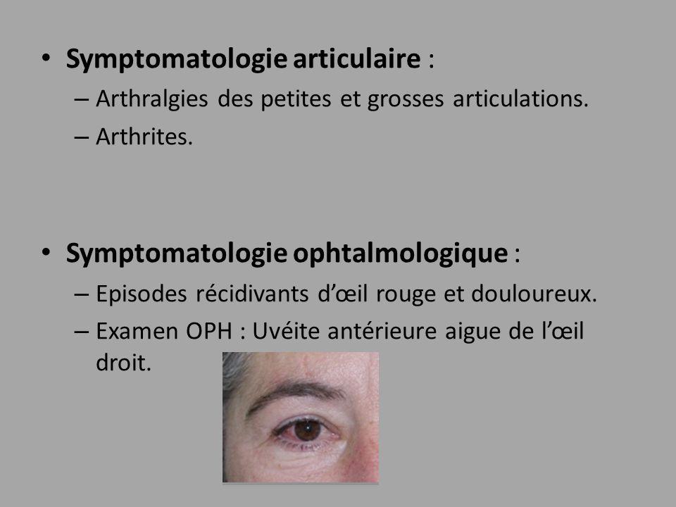 Symptomatologie articulaire :
