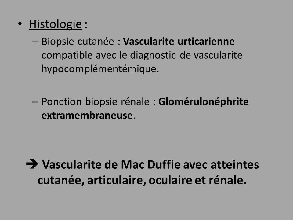 Histologie : Biopsie cutanée : Vascularite urticarienne compatible avec le diagnostic de vascularite hypocomplémentémique.