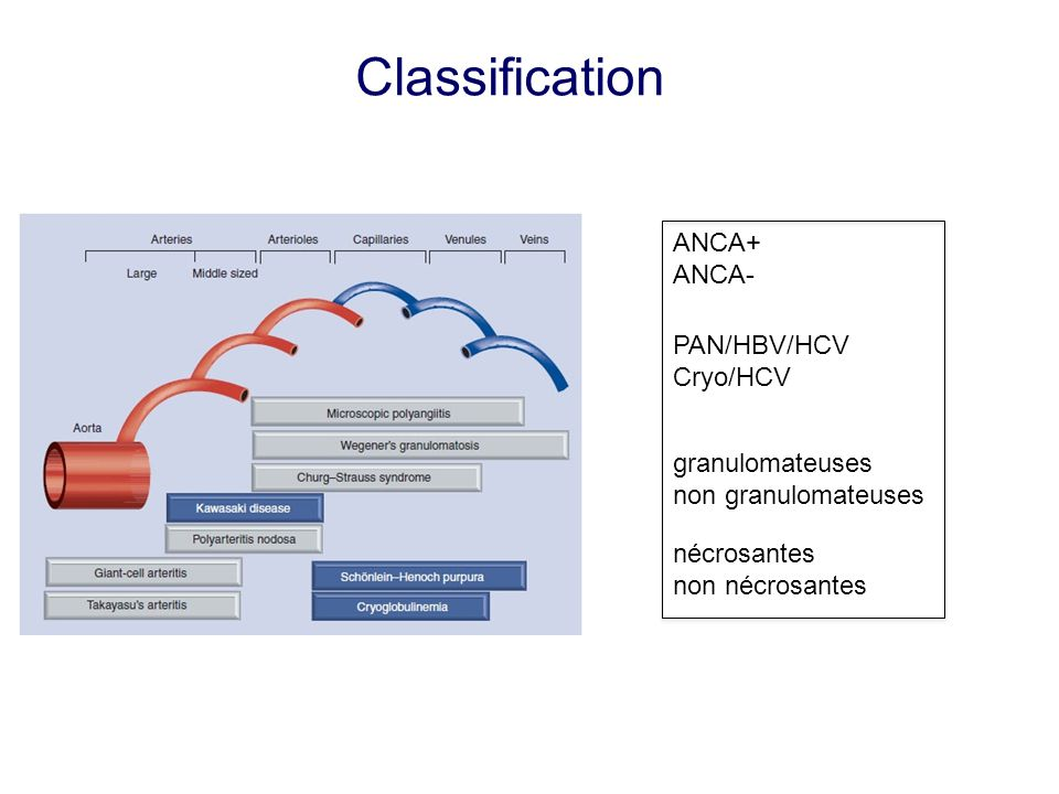 Classification ANCA+ ANCA- PAN/HBV/HCV Cryo/HCV granulomateuses