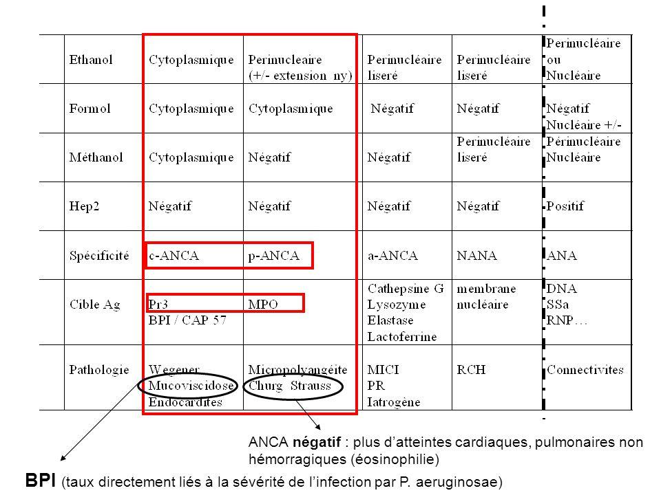 ANCA négatif : plus d'atteintes cardiaques, pulmonaires non hémorragiques (éosinophilie)