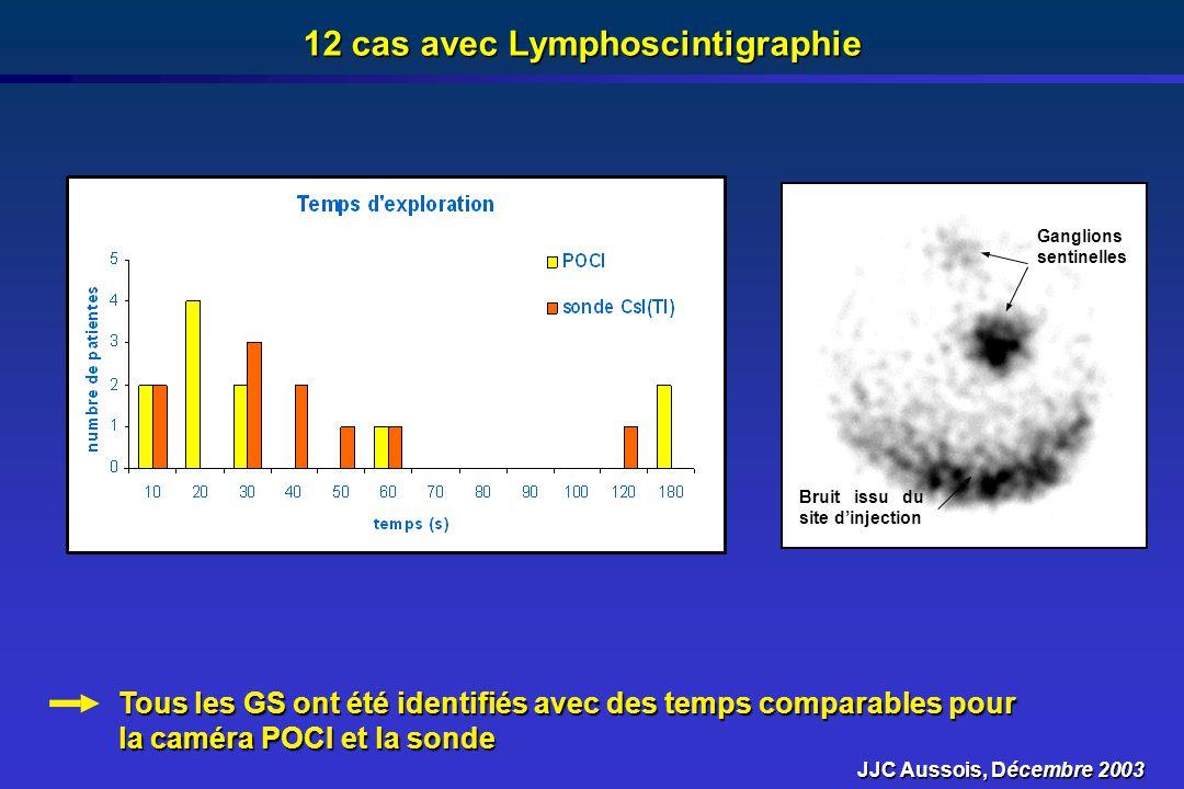 12 cas avec Lymphoscintigraphie
