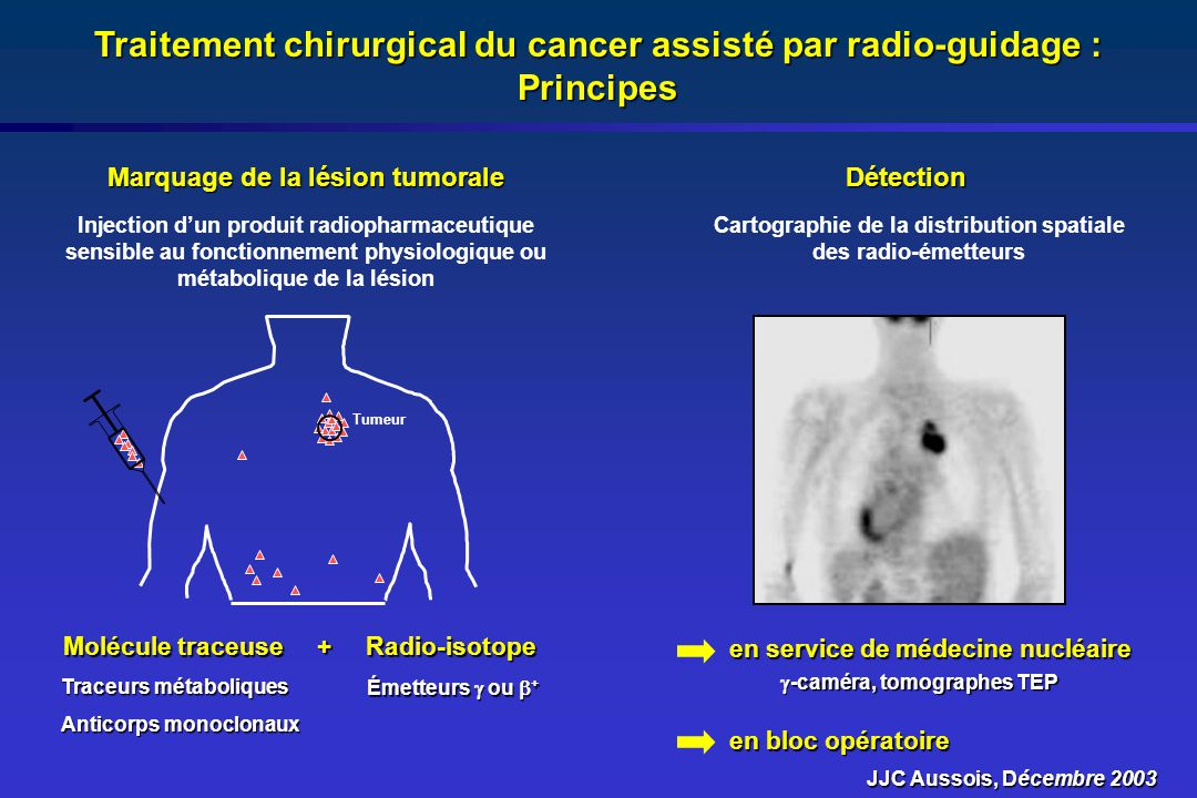 Traitement chirurgical du cancer assisté par radio-guidage : Principes